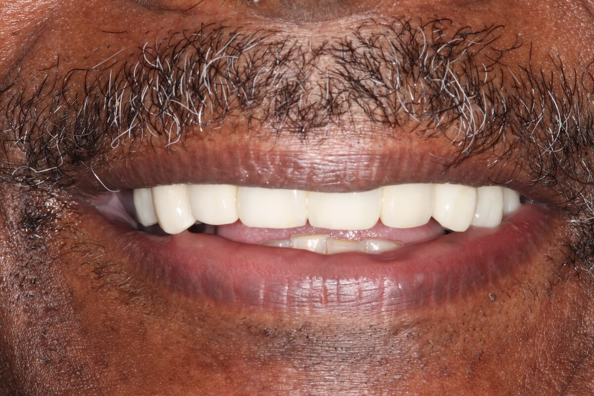 close up of man's mouth
