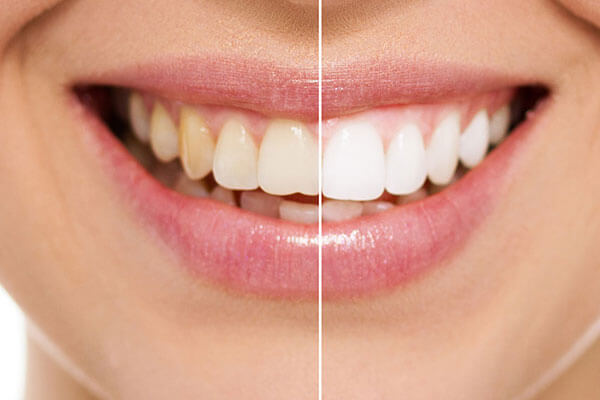 Teeth Whitening in NYC
