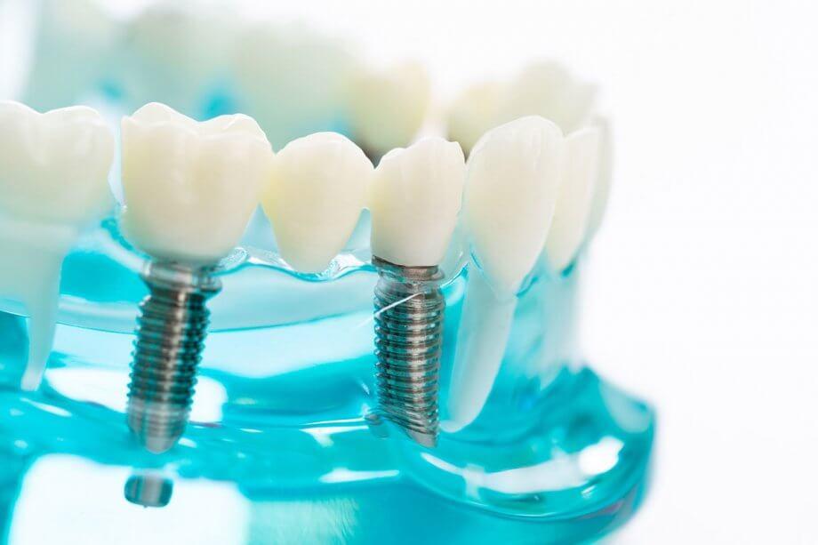 plastic model of dental implants