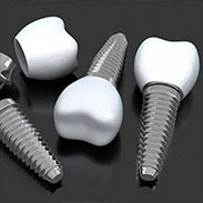 Dental Implants on the Upper West Side