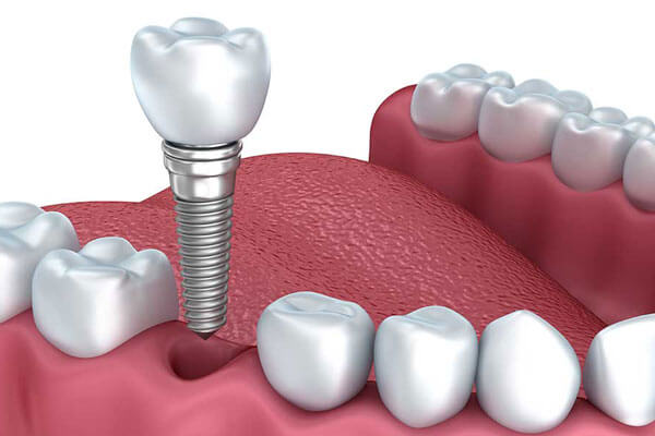 Implant Restorations in NYC