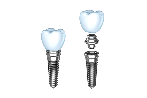 Single Dental Implant in NYC