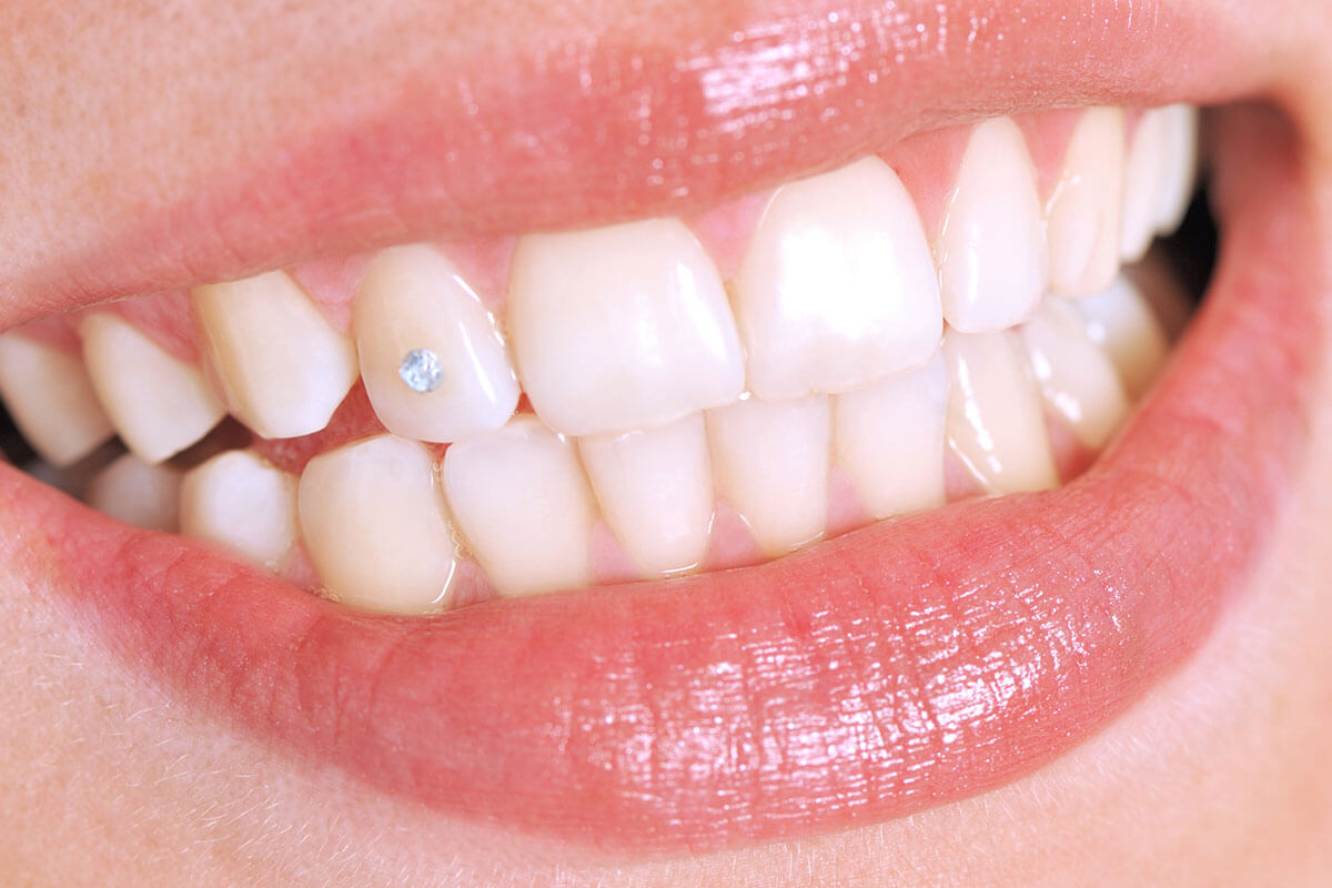 Tooth with Jewel